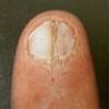 爪甲縦裂症