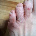 足先の水虫