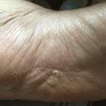 足の裏 水疱状の水虫