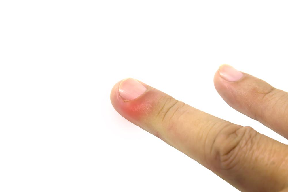 ささくれとは爪の皮が剥ける
