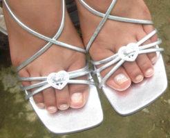 水虫でサンダルが履けなくなった女性 原因は若さゆえの油断
