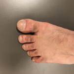 乾燥した指先の水虫(自己判断)