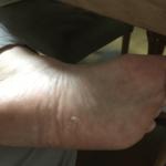 メンソレータムエクシブW液で水虫治療