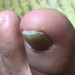 爪が厚くなってしまった爪水虫