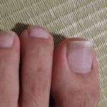 巻き爪で受診したら爪水虫と診断された