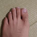 治療し始め6か月経過している爪水虫