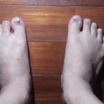 爪水虫と診断され2週間に1度通う状態